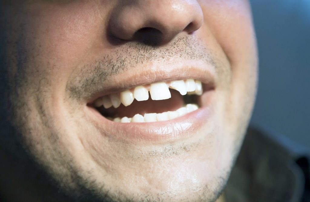 Diseases That Result From Poor Oral Health